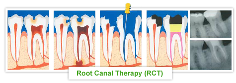Procedures - Endodontics - Root Canal Therapy
